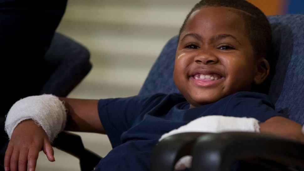 Meet The Happy Child Who Received The World's First Double Hand Transplant
