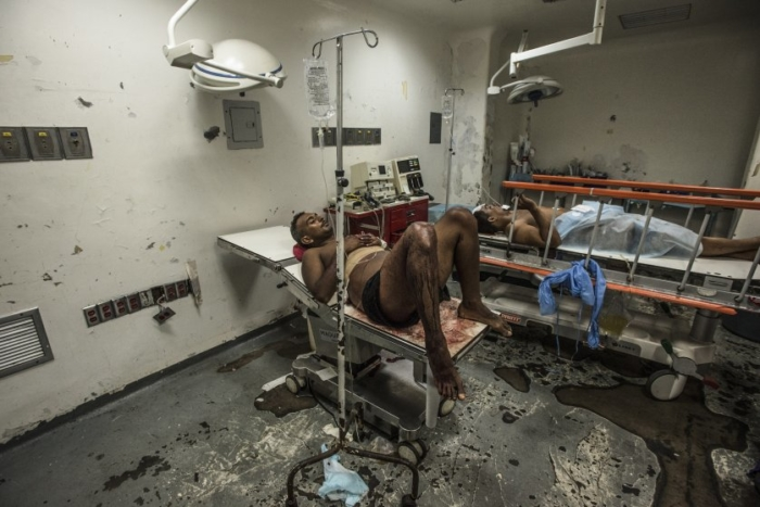 Jose Villarroel waits for hours in an emergency operating room at Luis Razetti Hospital in Puerto la Cruz, Venezuela, on April 15, 2016. The economic crisis in this country has exploded into a public health emergency; part of a larger unraveling that has become so widespread it has prompted President Nicolas Maduro to impose a state of emergency, raising fears of a government collapse.