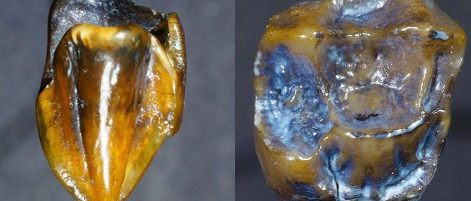 Mystery Fossil Teeth Spark Controversy About the History of Mankind